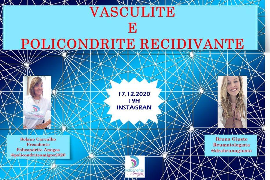 Vasculite e policondrite recidivante